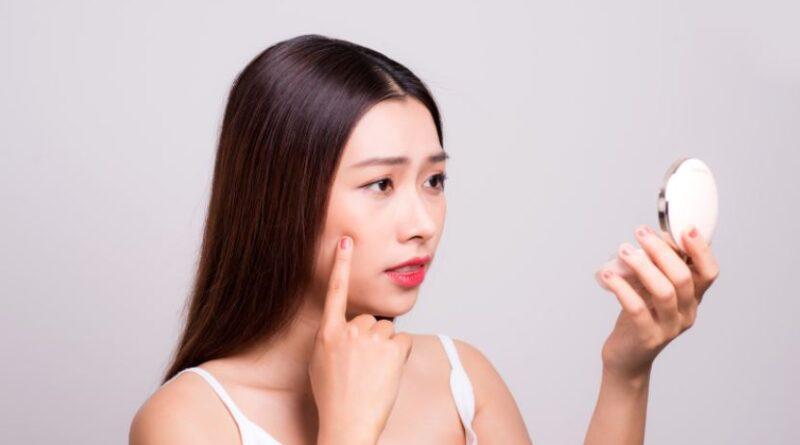 Acne-Free-Skin